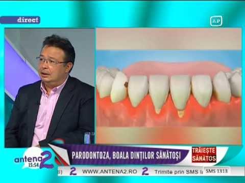 simptomele bolilor dentare
