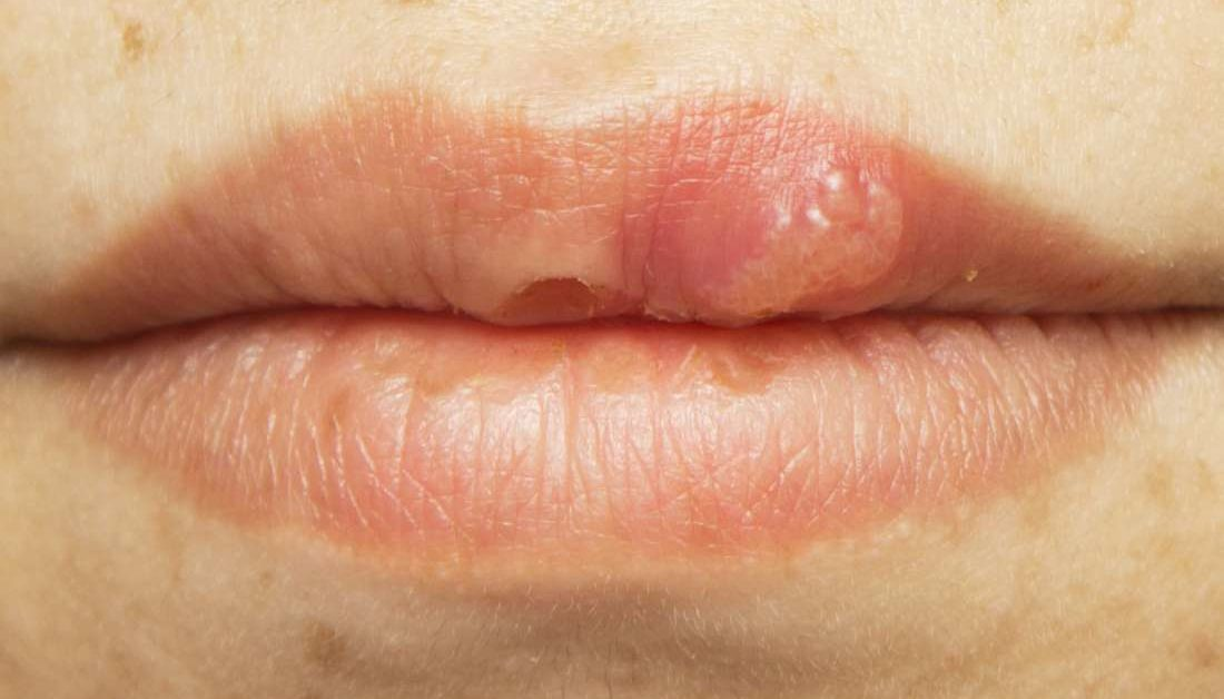 Hpv papilloma mouth. Wart virus in mouth