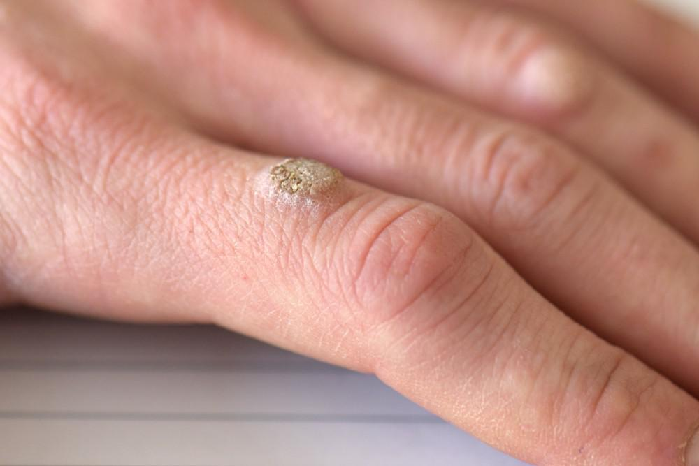Warts on hands and genital