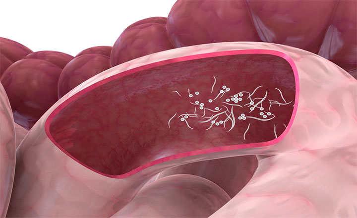 oxiuros tratamiento en embarazadas condiloame sau polipi în vagin