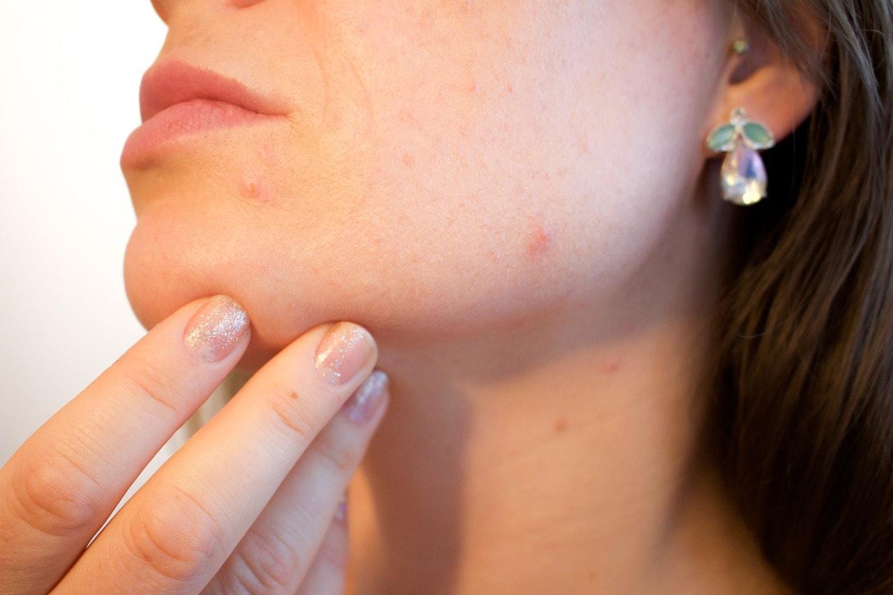 Mancarimi de piele – ce tipuri de cancer pot semnala - Cancer