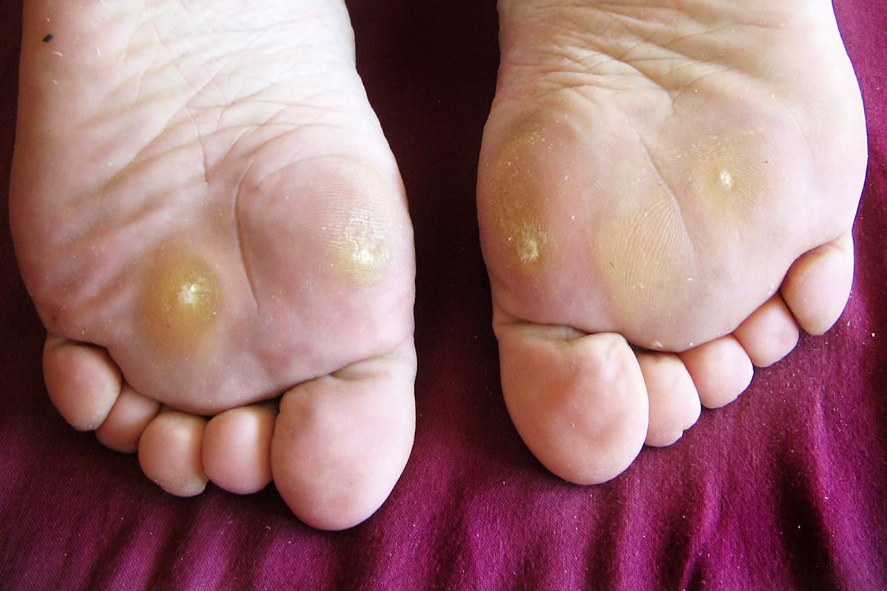 wart on foot with black center