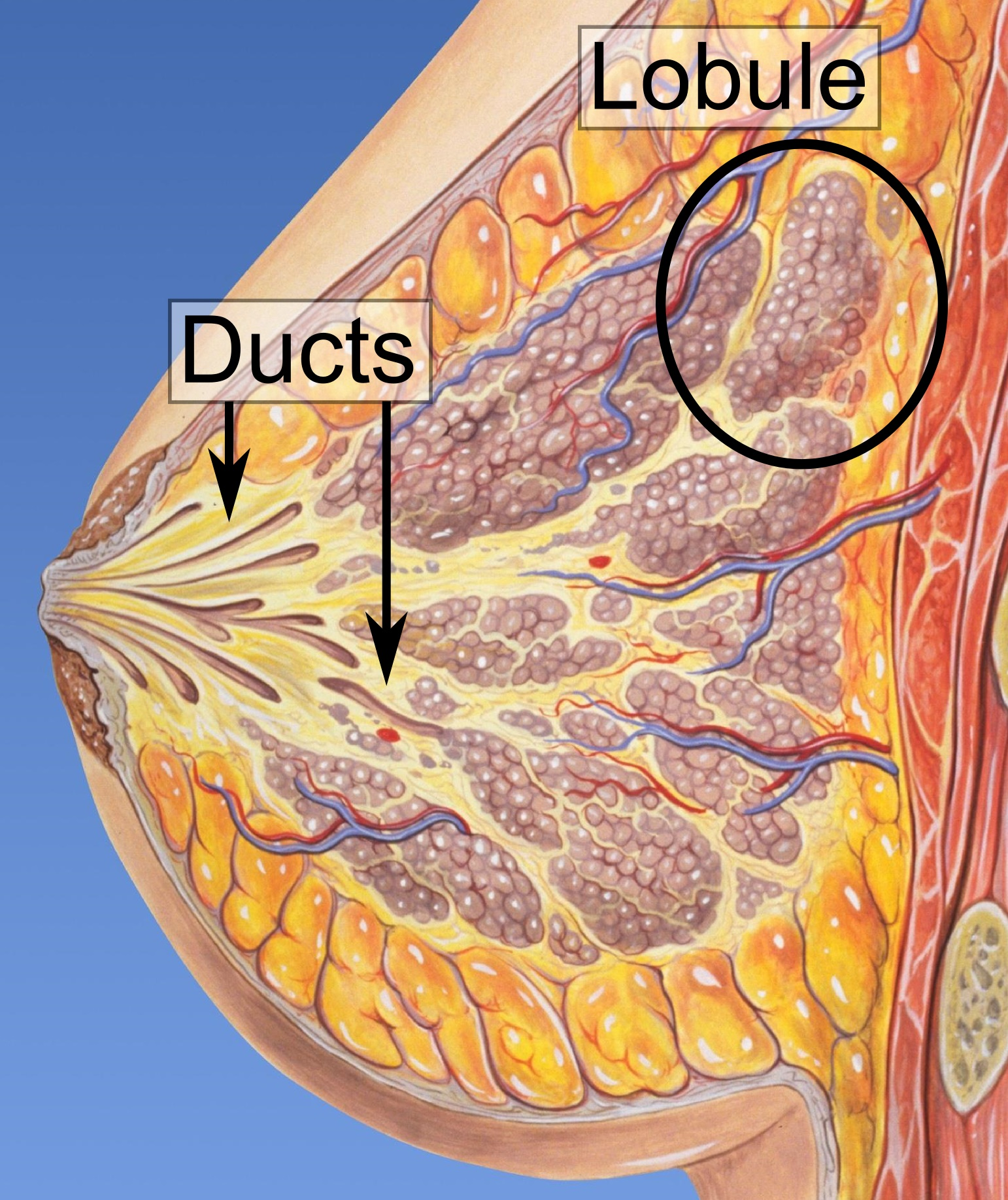 can ductal papilloma lead to cancer ligamentele papilomelor