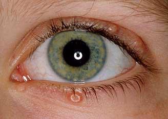 que es un papiloma ocular