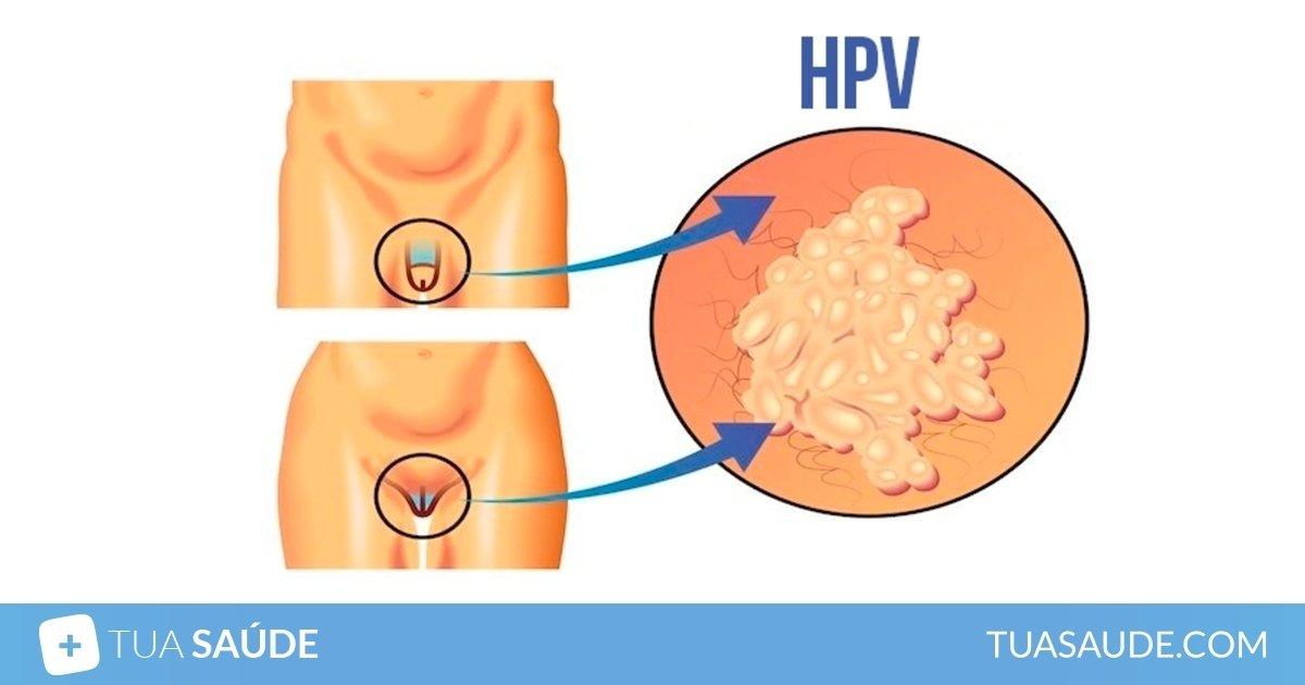 virusul papilomavirus uman ridicat