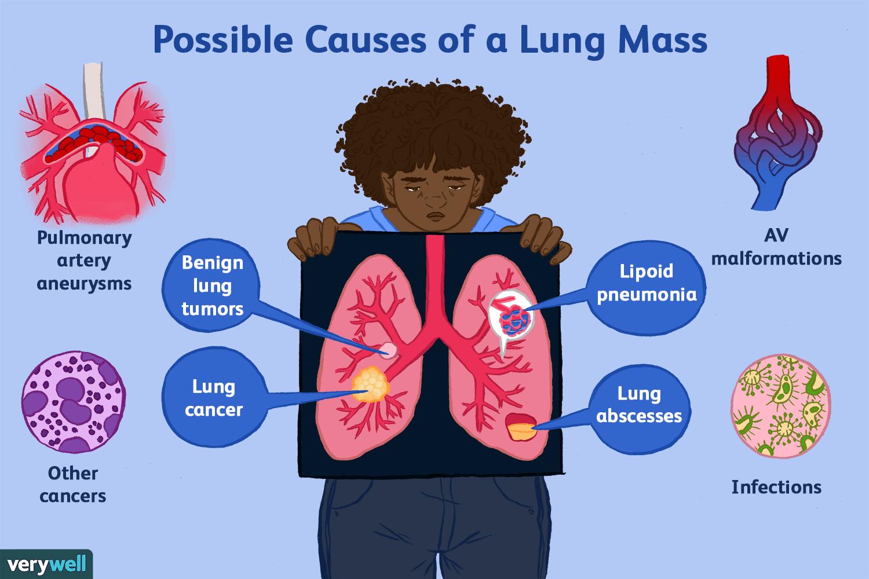 Cancer benign lung
