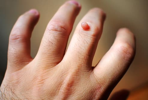 Are warts on hands normal
