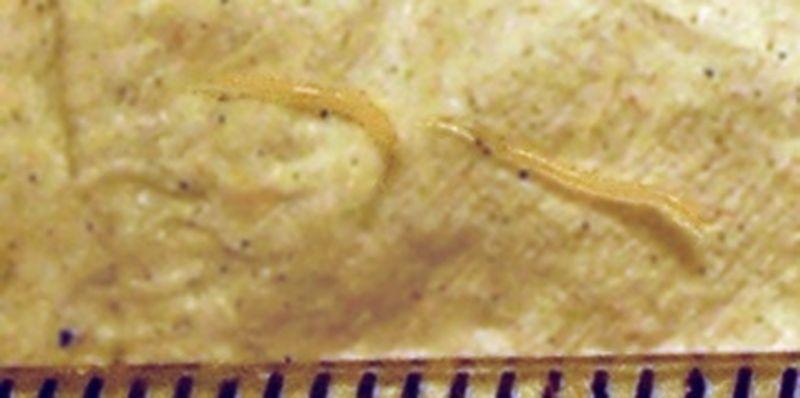 parazitii intestinali simptome papilloma ceppo 66