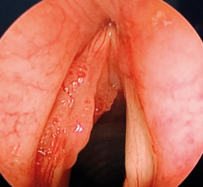 Laryngeal papillomatosis emedicine, Que es papiloma viral