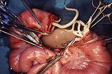 Helminth worm treatment. Parazitic de vierme în