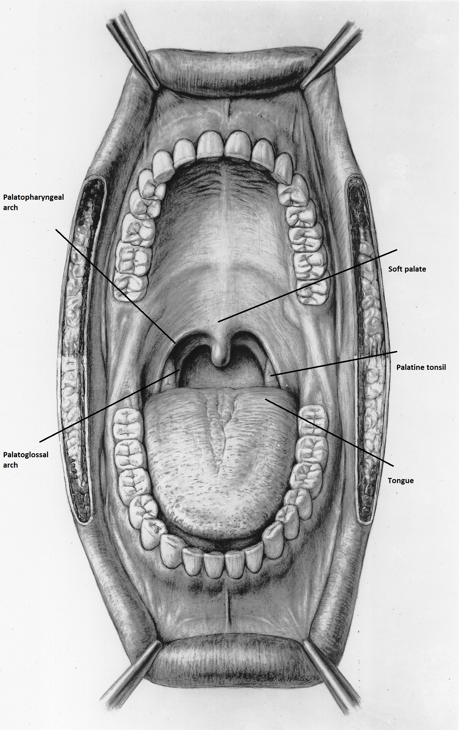 TODAY'S STRATEGIES IN OROPHARYNGEAL CANCER TREATMENT Hpv positive base of the tongue cancer