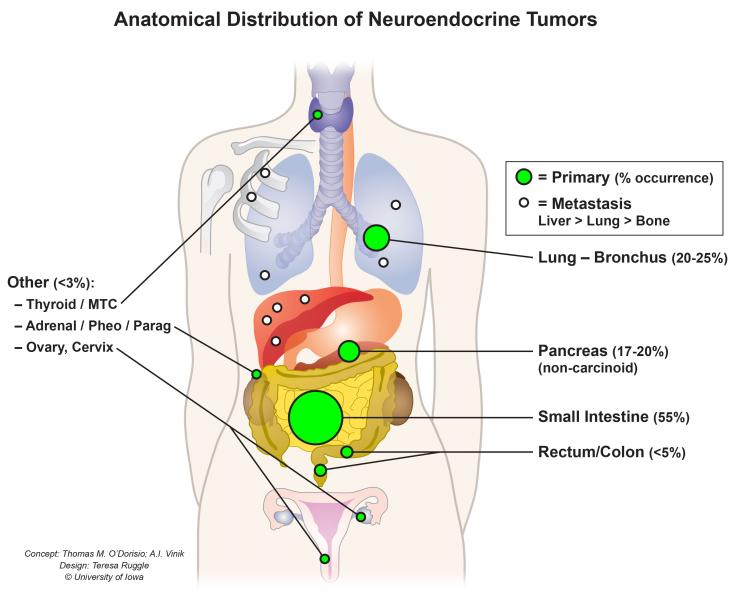 Metastatic cancer in liver treatment