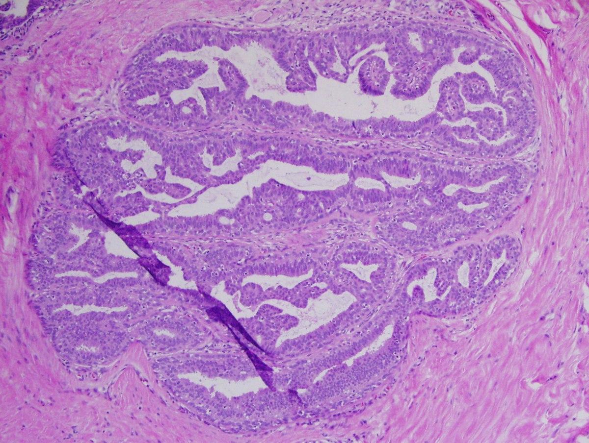ADN Human Papilloma Virus (HPV) - detectie + genotipare - Detalii analiza | Bioclinica