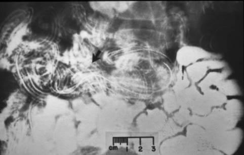 hpv virus finger warts împotriva paraziților de pe corpul copiilor