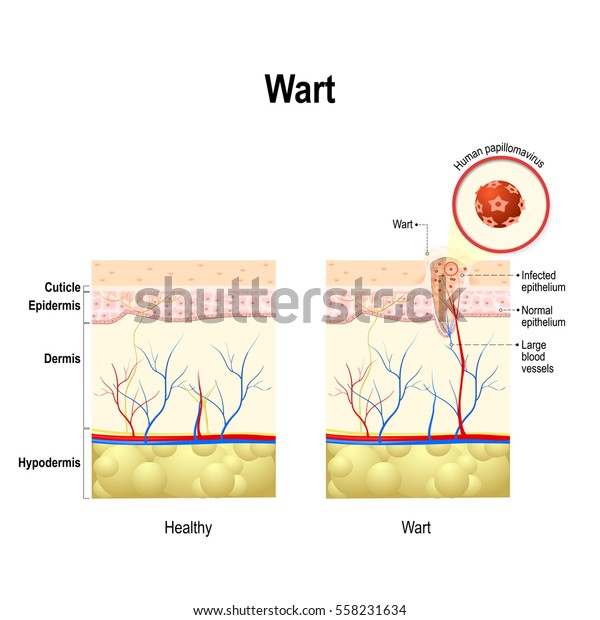 Hpv that causes warts on feet. Hpv foot wart treatment