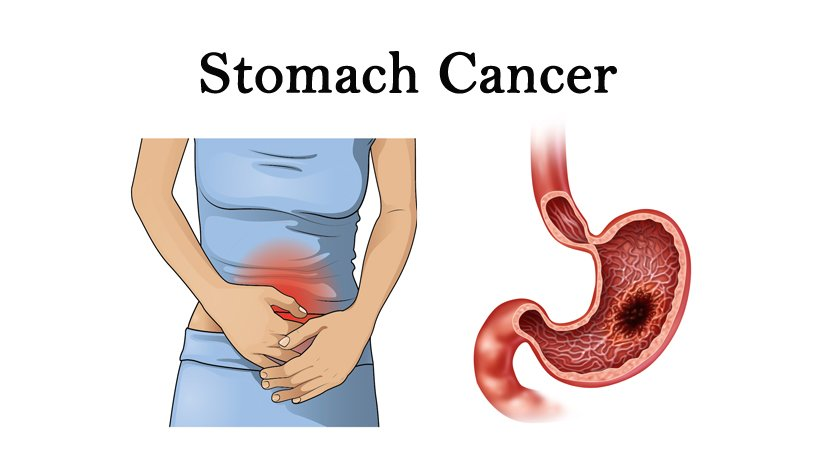 cancer in abdominal area