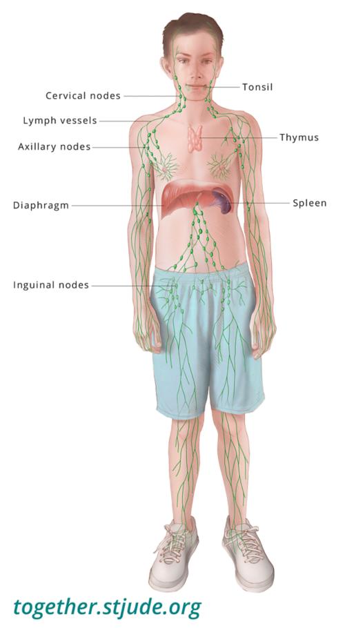 cancer hodgkin stade 3