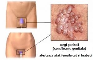 HPV – riscuri, diagnostic si tratament