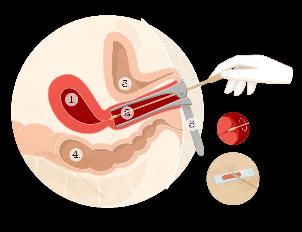 lesion papillomavirus et grossesse