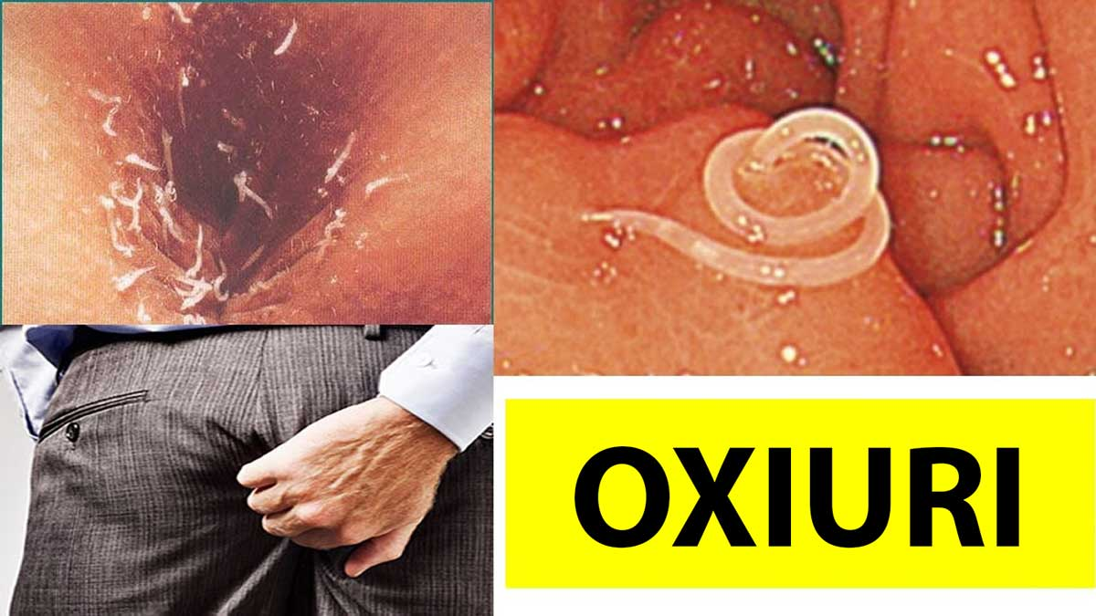 tratamento medicamentoso para oxiurus