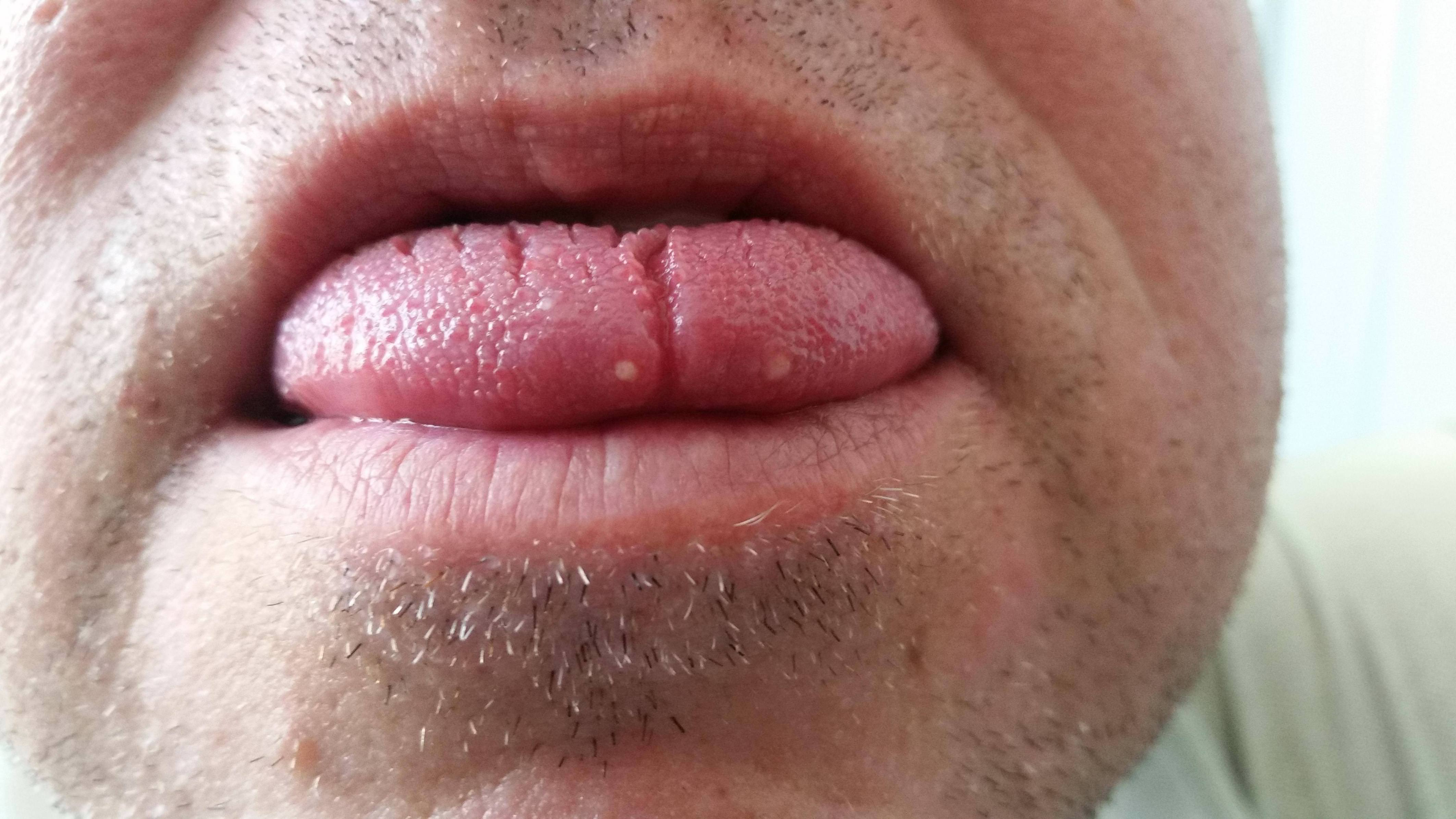 Condiloame în gură, limbă și buze: tratament și îndepărtare - Simptome October