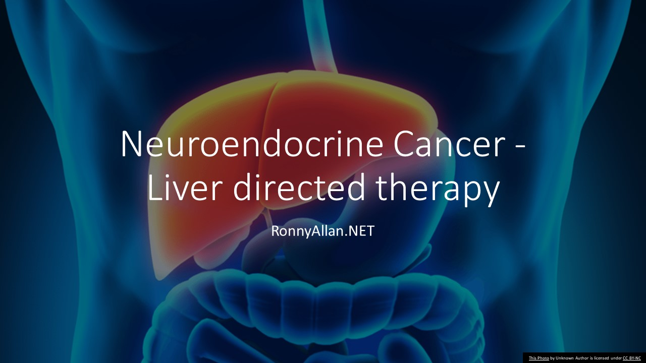 Metastatic cancer in liver treatment - Liver Metastasis: Biology and Clinical Management