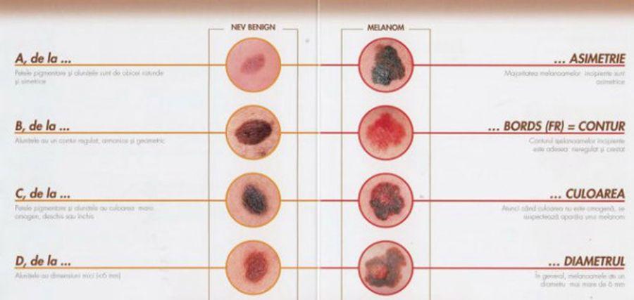 cancerul de piele definitie simptomele bolilor dentare