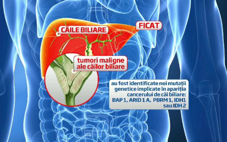 cancer de cai biliare