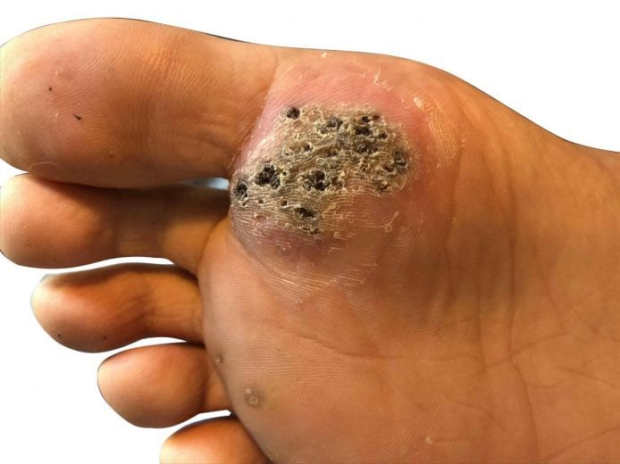 Wart on a foot