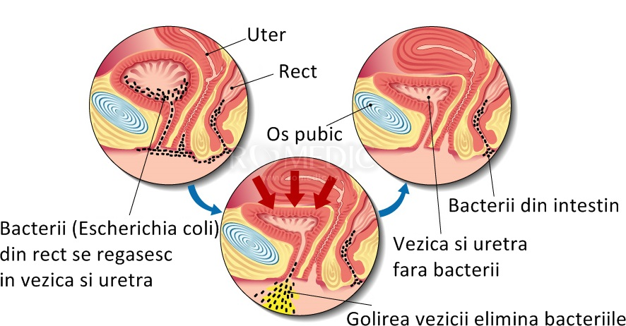 cancer linfatico hodgkin en estado agresivo hpv gardasil info
