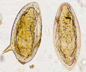 Papiloma xal - Papiloma xal. Gastric cancer uk
