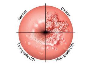 virus hpv donne sintomi
