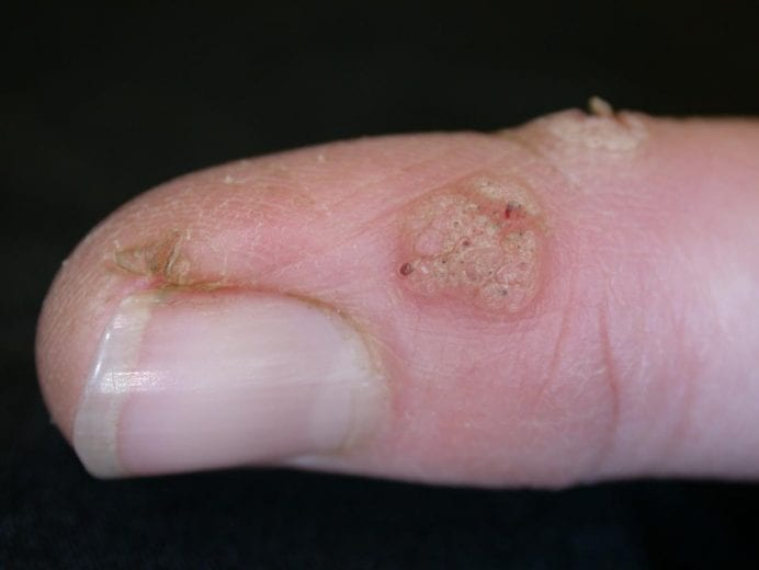 warts on hands are caused by tipuri de viermi paraziti