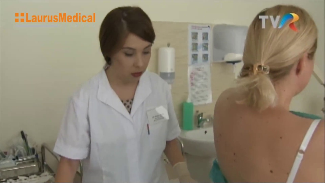 cum se tratează papiloamele uterului