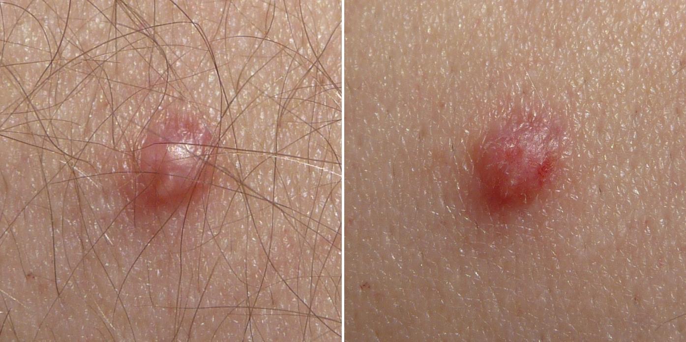 Papillomavirus humain verrue. De ardere pete albe crește organele genitale