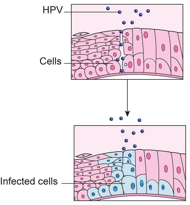 hpv cancer causing virus remedii naturiste impotriva viermisorilor la copii