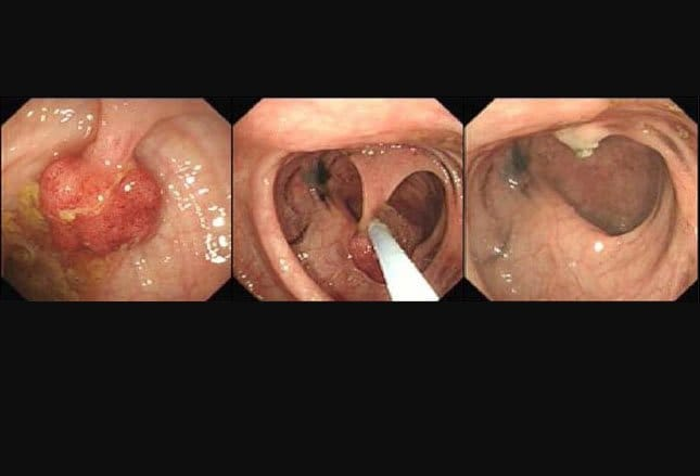 Cancer of rectal polyps Cancer of rectal polyps