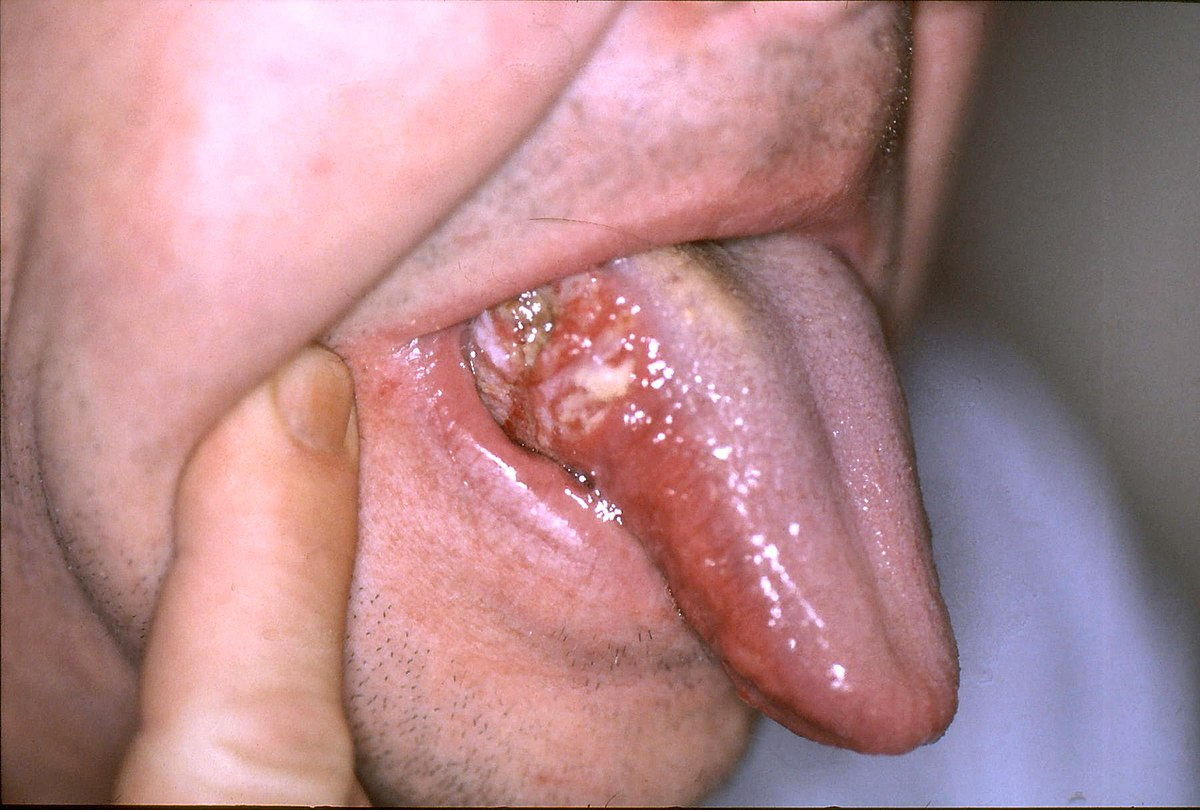 Hpv induced throat cancer, Virusul HPV, asimptomatic
