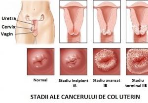Cancerul ovarian – transmitere ereditara, simptome, tratament