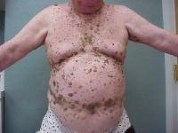 hpv virus posledice