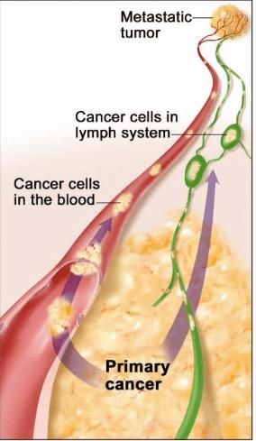 neuroendocrine cancer in lymph nodes