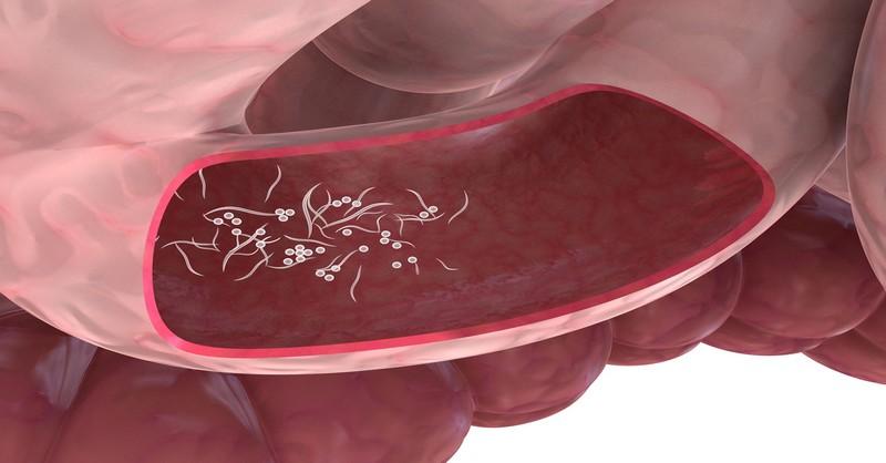 Paraziti ve strevech priznaky Parazity v ludskom tele priznaky,