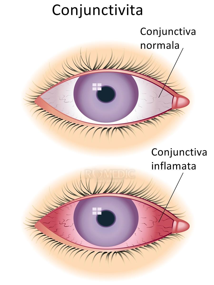 Papilomul pe pleoapa ochiului nu mai este o problema: secretele eliberarii rapide si nedureroase