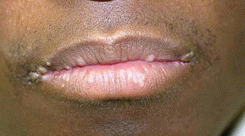 condiloame în gură pe buze