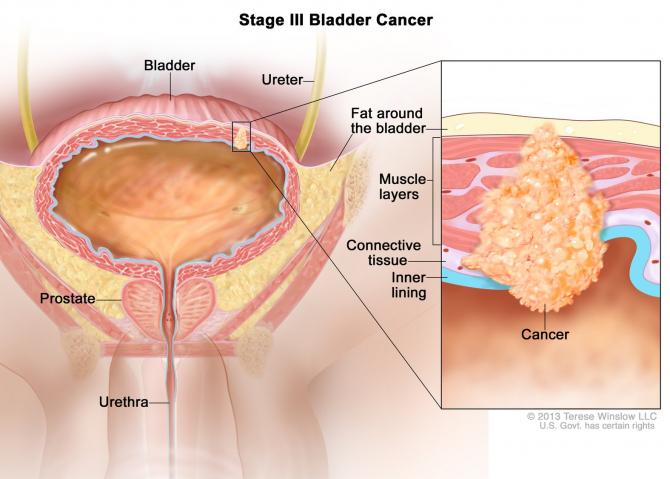 Semne de alarma: cancere | coboramlaprima.ro