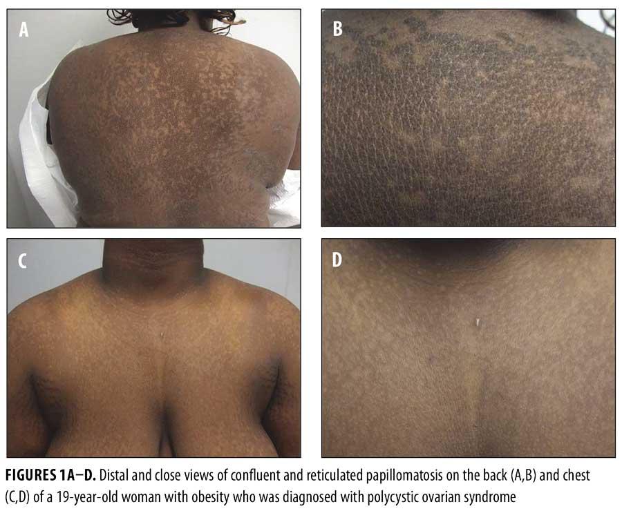 Confluent reticulated papillomatosis causes