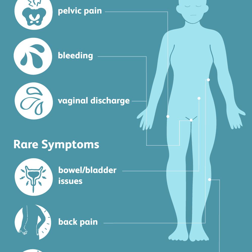 Genital hpv infection symptoms in females - coboramlaprima.ro - Hpv symptoms on females