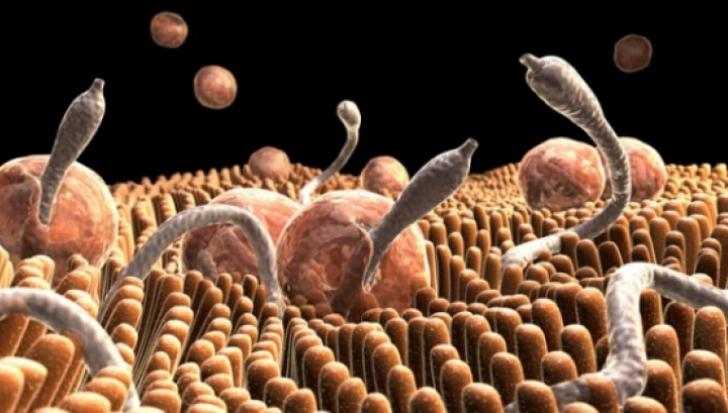 viermi de stomac helmintiaza este contagioasă sau nu