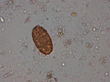 Examen materii fecale la ouă de helminţi