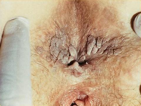 tratarea helmintelor sub formă de tablete îndepărtați rapid viermii din corp